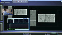 tmb webcast Renal Sympathetic Denervation Post AFA